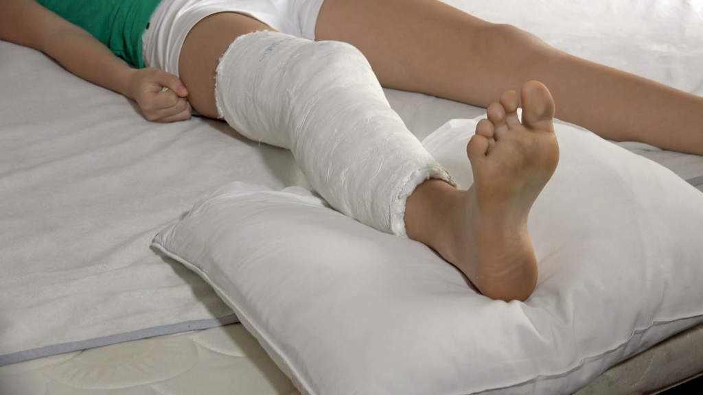 mother-does-massage-to-child-broken-leg-in-hospital-bed_vdzfc5spe__F0002